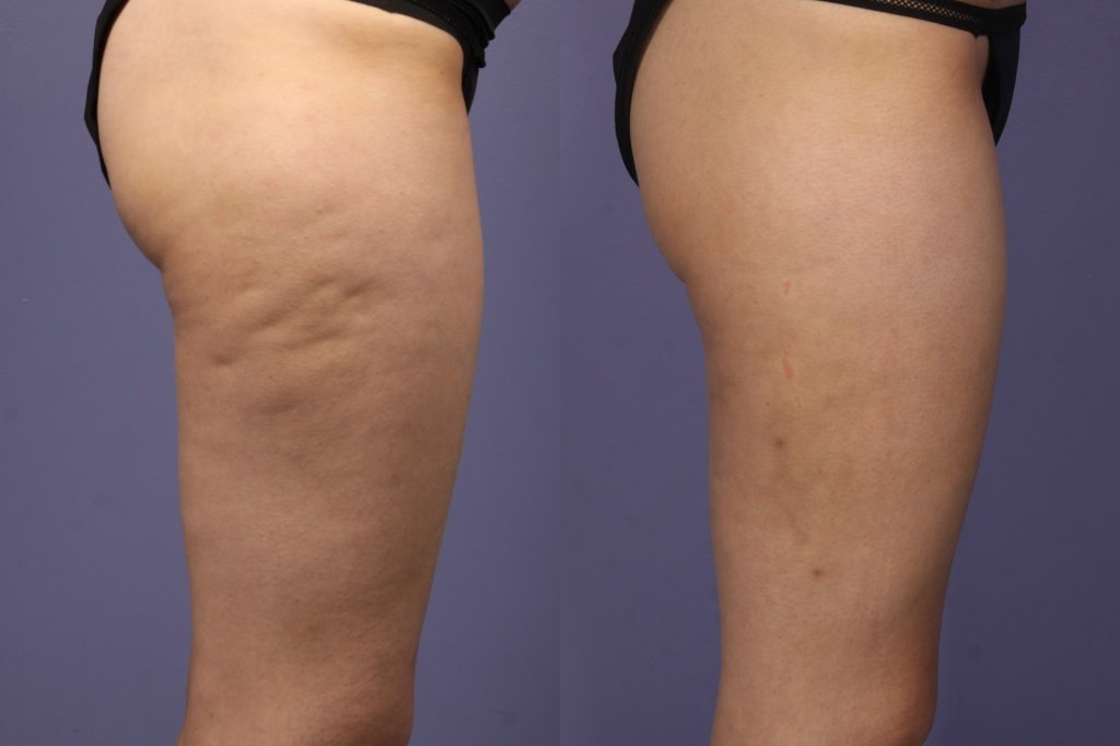 mpsa-cellulaze-patient.jpg